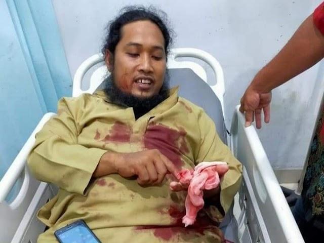 4 Fakta Ustadz Yang Ditusuk Saat Ceramah Maulid Nabi di Aceh