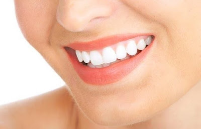 Tips Alami Gigi Putih Bersih Bebas Plak Dalam Sepuluh Hari