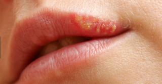 Cold sores are common and usually clear up on their own within 10 days
