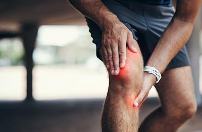 Penyakit arthritis septik adalah gangguan pada sendi manusia yang diakibatkan oleh infeksi. Apabila hal ini terjadi kepada seseorang maka orang tersebut akan merasakan ketidaknyamanan atau terasa terganggu dalam melakukan sebuah aktivitas keseharian dengan baik dan normal. Di karenakan efek buruk yang diberikan oleh penyakit ini.  Hal ini bisa terjadi pada tubuh manusia atau yang lebih tepatnya pada daerah sendi, di akibatkan oleh karena adanya cedera dan sebagainya. Nah untuk mengetahui lebih lanjut dalam membaca bahasan penyakit arthritis septik pada infeksi sendi manusia, silahkan di simak dan baca dengan yang telah tersaji di bawah ini.     Penyakit Arthritis Septik Pada Infeksi Sendi Manusia  Arthritis septik merupakan sebuah gangguan yang ditemui pada sendi di dalam tubuh manusia, hal ini menyebabkan adanya infeksi di dalam sendi yang disebabkan oleh bakteri yang masuk ke dalam sendi sehingga menimbulkan bengkak dan nyeri. Hal ini bisa terjadi dikarenakan adanya cedera pada daerah sendi dan sistem imum yang melemah di dalam tubuh manusia.  Maka dari itu penting untuk mengerti dan mengenali kondisi ini agar di dalam melakukan aktitvitas keseharian dapat lebih berhati-hati dan selalu melakukan pola hidup sehat. Untuk mengetahui lebih lanjut dalam bahasan penyakit dari kondisi ini, silahkan di simak dan ikuti dengan sebagai berikut ini :  1. Pengertian Arthritis Septik  Septic arthritis atau artritis septik adalah infeksi di dalam sendi, artinya bakteri masuk ke dalam sendi dan menyebabkan bengkak dan nyeri. Septic arthritis jarang terjadi pada beberapa sendi pada saat yang bersamaan.  Sendi yang rawan infeksi termasuk lutut, pinggul, pergelangan tangan, sendi-sendi bahu, dan sendi-sendi pergelangan kaki.Septic arthritis menyakitkan dan merusak sendi, bahkan mungkin harus  melakukan operasi penggantian sendi.  2. Seberapa Umum Terjadi Arthritis Septik  Siapapun dapat berisiko terkena septic arthritis. Namun demikan, penyakit ini sangat umum pada anak-anak di bawa