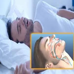 انقطاع النفس النومي - الاسباب والعلاج
