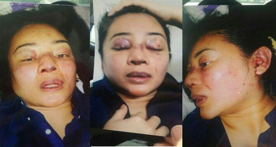 Gambar Rozana Cedera Teruk. Beliau Mendakwa Awie Telah Membelasahnya