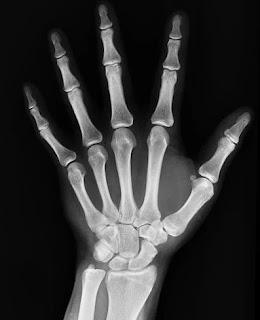 X-ray in hindi