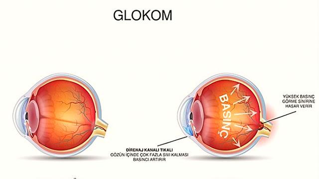 erken tanı göz tedavilerinde çok önemlidir, kişiye diyabet teşhisi konulduktan sonra göz tetkikleri detaylı yapılmalı, sonuçlara göre hasta diyabetin seyrine göre kontrol altında olmalıdır.