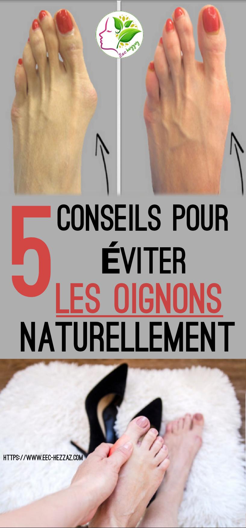 5 conseils pour éviter les oignons naturellement