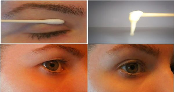 This 2 Minute Treatment Will Relieve the Eyelids if Your Eyes are Too Creased