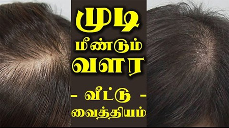 It is possible to regrow hair through ayurvedic treatment