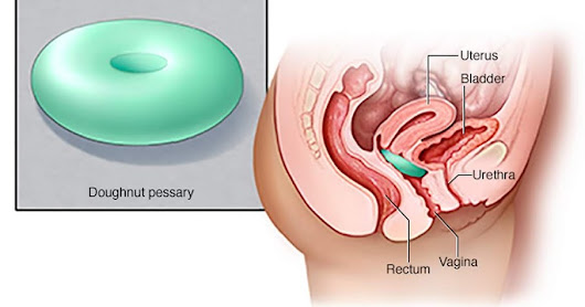 Does Uterus Prolapse Affect Your Daily Routine? Get The Treatment Here
