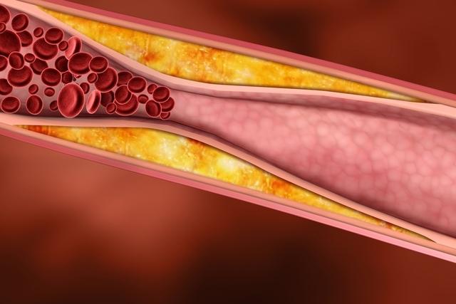 5 Principais Causas da Aterosclerose