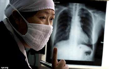 cara menyembuhkan tbc / tuberkulosis dengan cepat