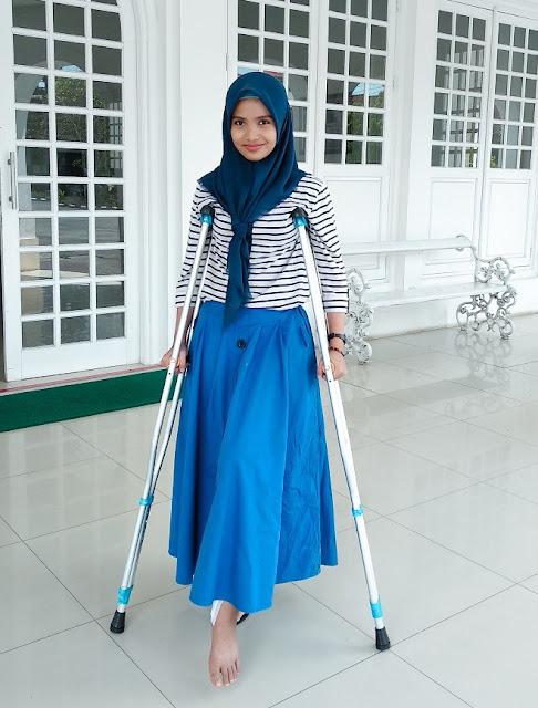 operasi patah tulang kaki rst magelang