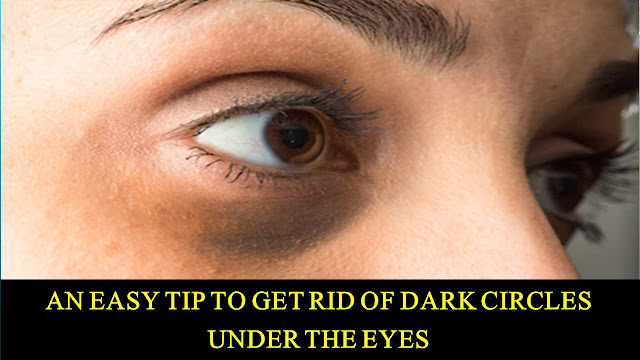 An Easy Tip to Get Rid of Dark Circles Under the Eyes