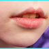 Can You Need to Know About Angular Cheilitis