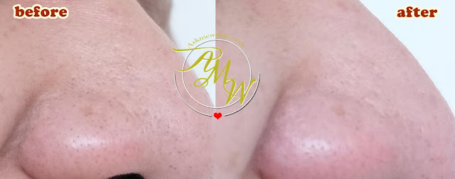 before and after photo of Althea A'BLOOM BHA BLACKHEAD BLASTER