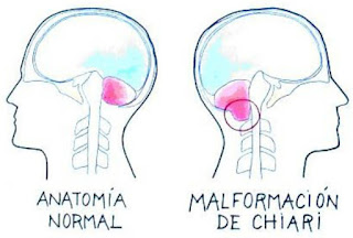Comparación de cerebro normal con Chiari