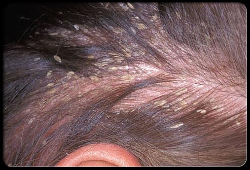Dry Scalp Natural Hair