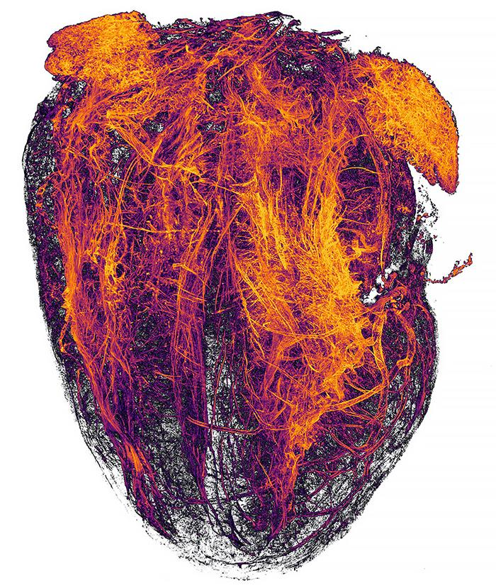 Blood vessels of the mouse heart after a heart attack