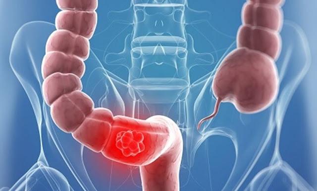 تعرف على سرطان الأمعاء - الأسباب والاعراض والعلاج
