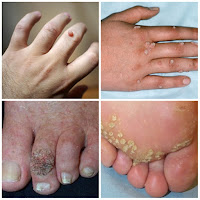 Treatment of warts.