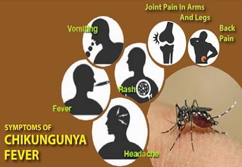 Chikungunya (CHIKV) fever, caused by Chikungunya virus