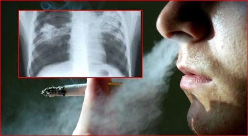 cara menghilangkan asap rokok di paru paru dengan cepat
