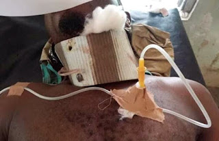 UNBELIEVABLE: Doctor Improvised An Incubator Using Carton And Saved An Accident Victim With A Cervical Collar Constructed With Slippers - PHOTOS