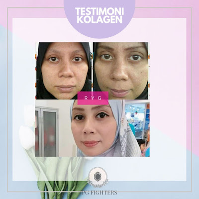 Testimoni Collagen Plus Powder Shaklee
