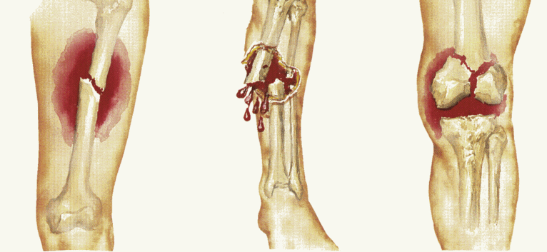 Tulang Patah