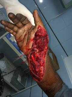 herida en antebrazo