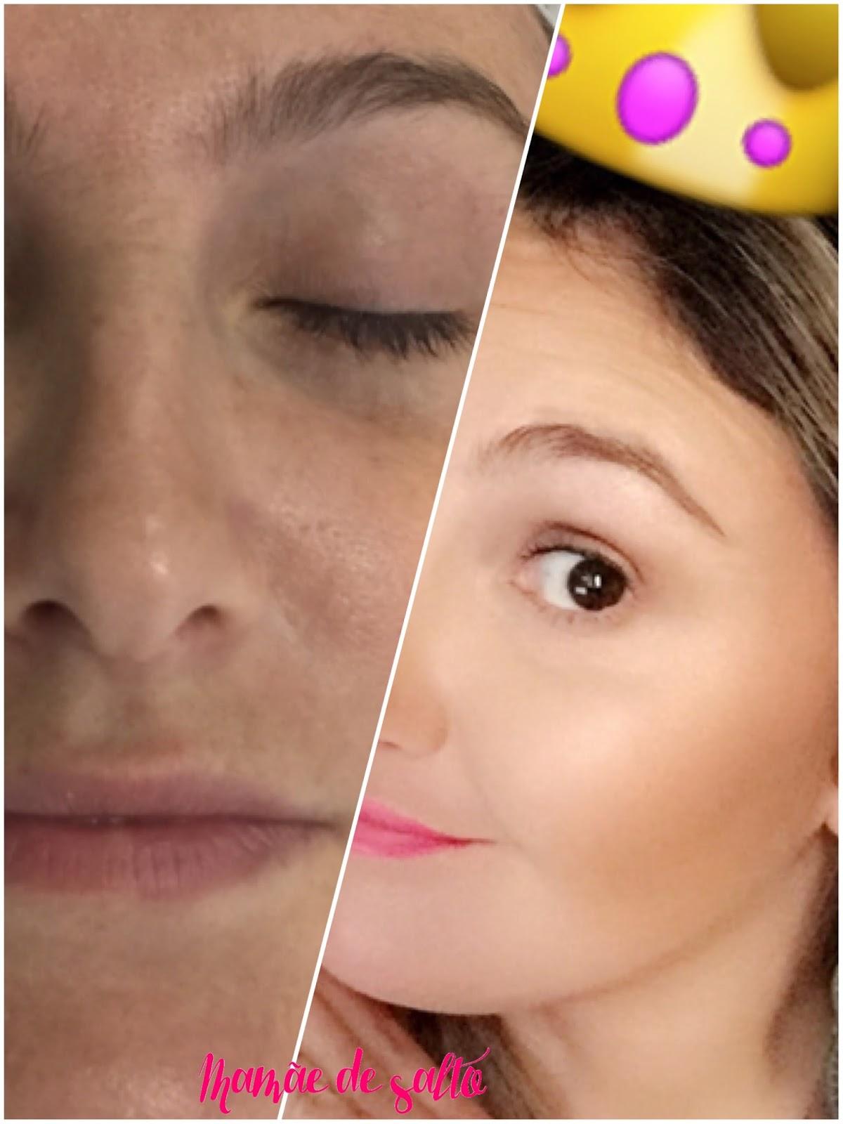 antes e depois laser fracionado pixel por Corpore Laser - blog Mamãe de Salto