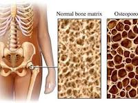 OSTEOPOROSIS & ASAM URAT ?!! ATASI DENGAN MILAGROS