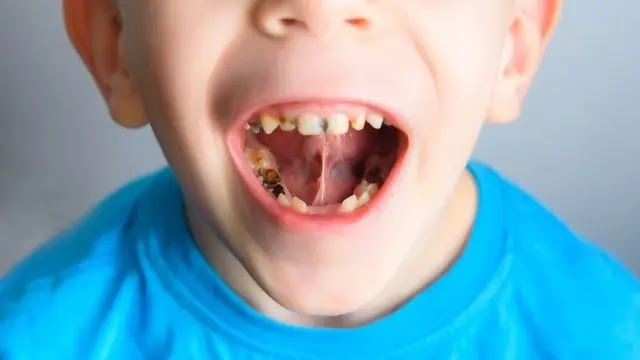 تسوس الأسنان عند الأطفال 5 سنوات .