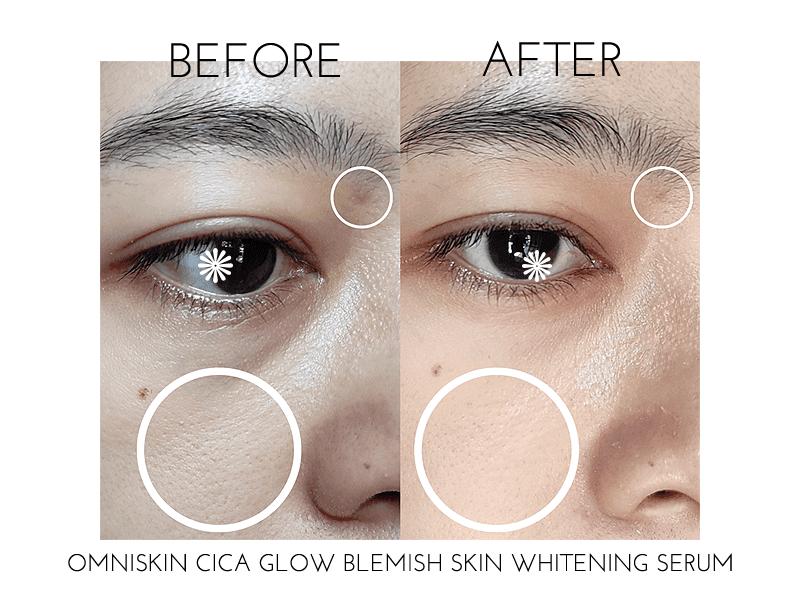 review-omniskin-cica-glow-blemish-skin-whitening-serum