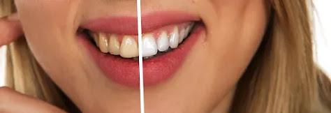 وصفات طبيعية  لتبيض الاسنان من أول مرة