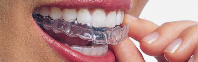 Invisalign-Dentist-1920x600.jpg