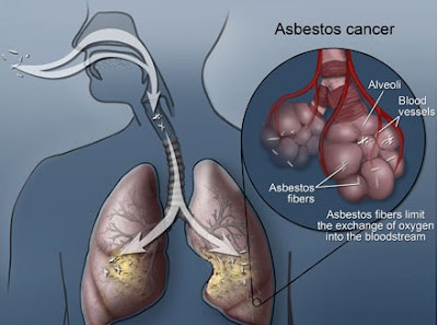 What is Mesothelioma Asbestos Cancer