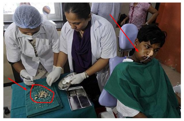 Image result for Mengerikan!! Remaja ini Mengeluhkan Sakit Gigi, Ternyata Saat Di Periksa Di dalam Giginya Terdapat… Sungguh Tidak Di Sebagian Duga..