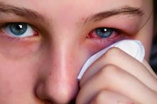 cara mengobati mata belekan