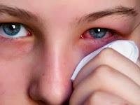 6 Cara Mengobati Mata Merah Karena Belekan
