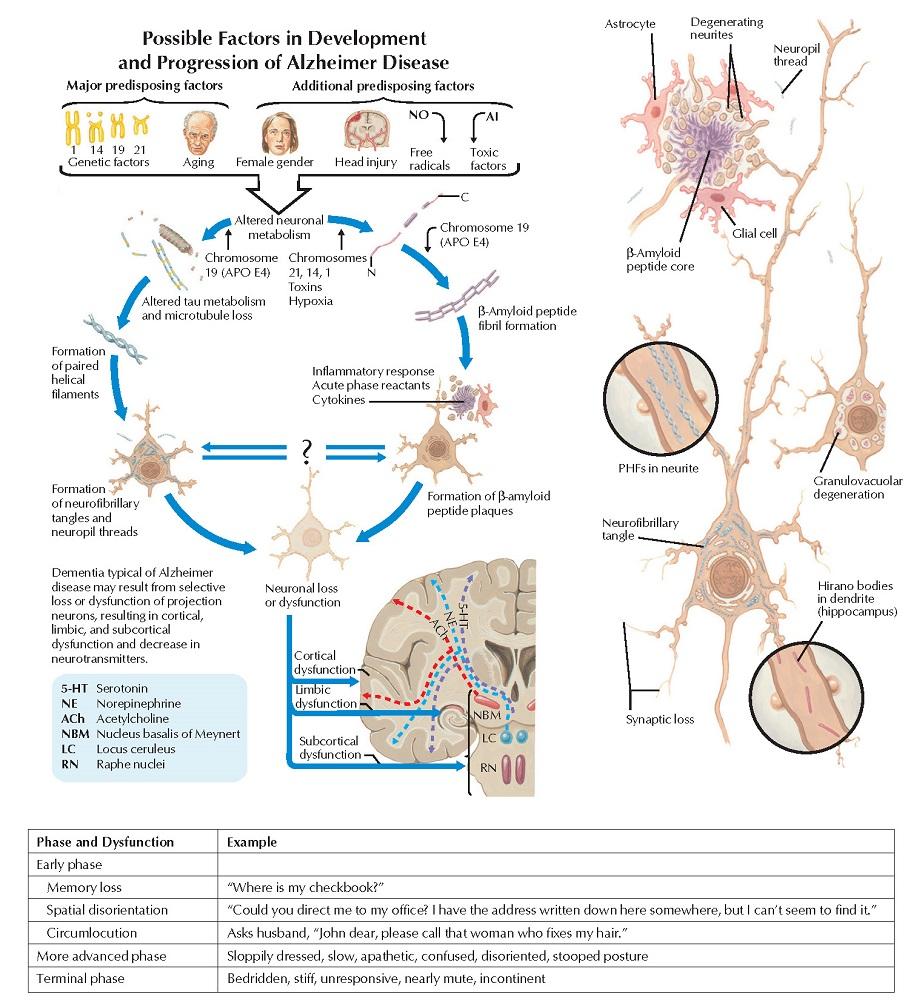Alzheimer Disease: Symptoms, Course, and Pathology