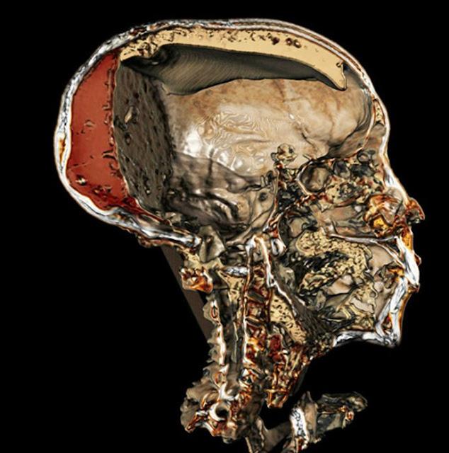 Esta imagen obtenida mediante tomografía computadorizada nos ofrece una sección detallada del cráneo momificado del faraón Tutankamón, en la que se puede apreciar incluso la resina que inyectaron en su cadáver los embalsamadores.