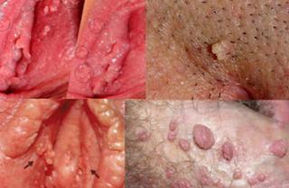 Pengobatan Vagina Timbul Bintik Bintik