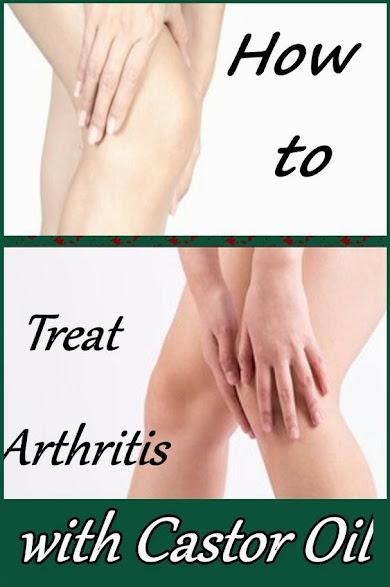 How to Heal Arthritis with Castor Oil