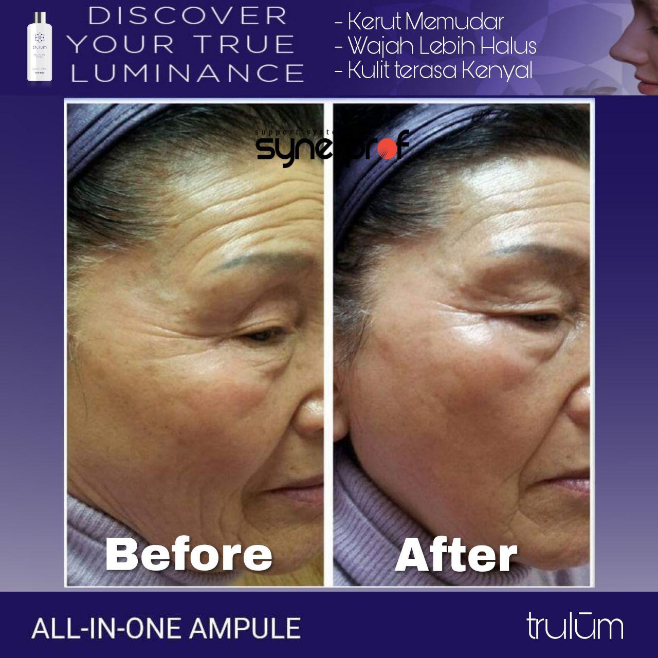 Jual Trulum All In One Ampoule Di Sukasari, Serang WA: 08112338376