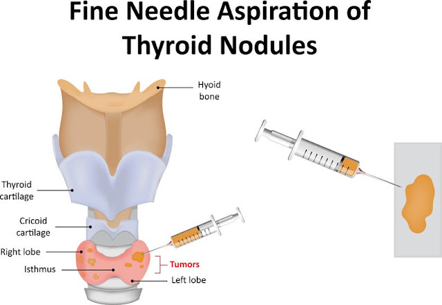 Ujian biopsy untuk bengkak tiroid.