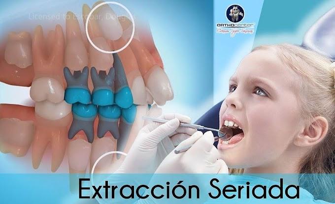 WEBINAR: EXTRACCIÓN SERIADA en Ortodoncia - C.D José Victor Ávalos Rodriguez