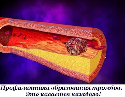 Профилактика образования тромбов. Это касается каждого!