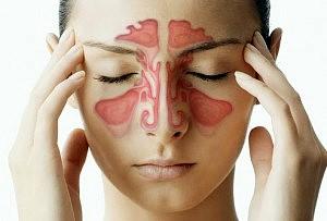 natural-remedies-to-get-rid-of-sinusitis