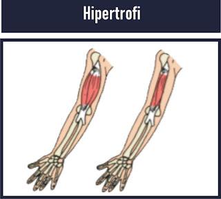 hipertrofi adalah Kelainan otot yang membesar dan menjadi lebih kuat karena sel otot diberikan kegiatan/aktivitas yang terus-menerus secara berlebihan.
