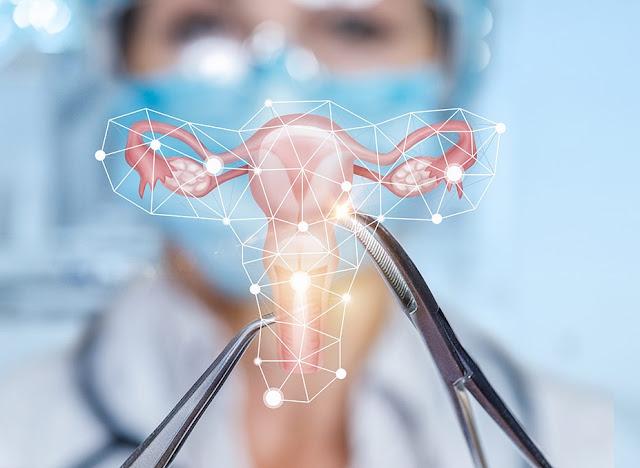 كيف يمكن علاج سرطان الرحم! مراحل علاج سرطان الرحم بالتفصيل
